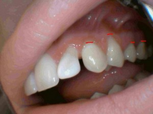 tooth and gum worn away by a lip piercing