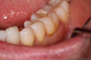 lnormal looking teeth left side