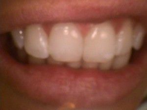 Repaired tooth